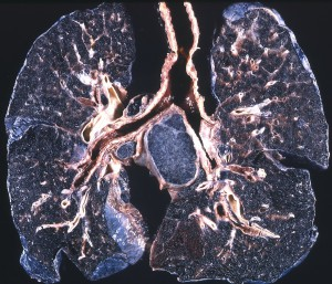 lungs blackened by silicosis